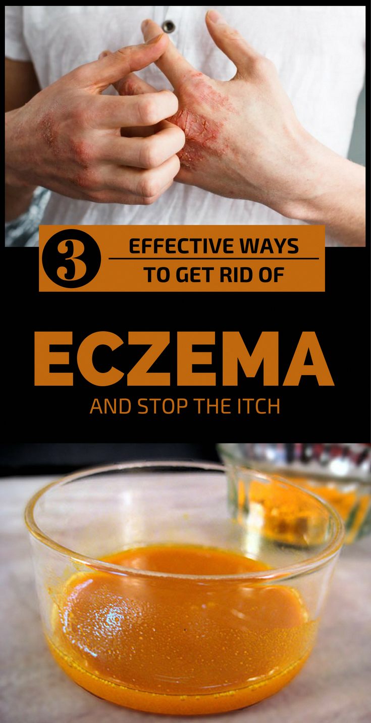 Can Vitamin Supplements Cause Eczema
