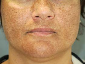 DE MUJER A MUJER, CONSEJOS DE SALUD: Remedios para el paño de la cara