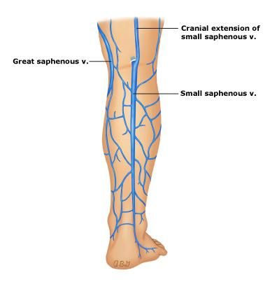 lateral malleolus and small saphenous vein - Google Search ...