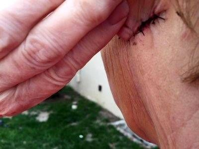 Dissolvable Stitches After Facelift Photo | Traditional