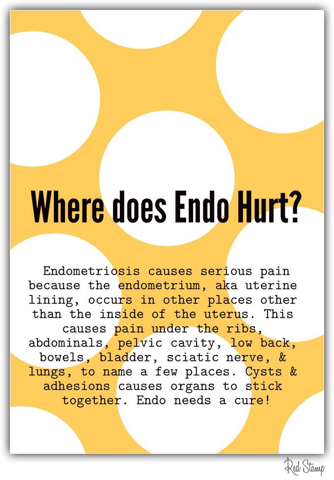 Places Endo Can Hurt Endometriosis Endometriosis Endometriosis