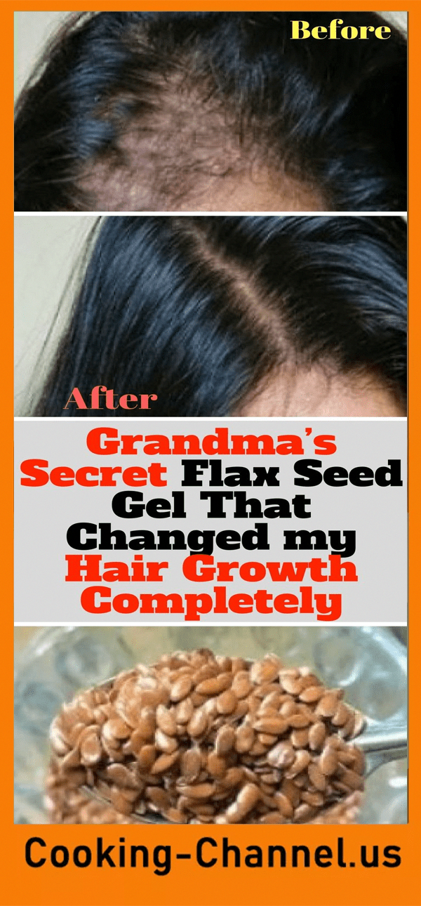 Vitamins for Hair Growth} and Hair Growth Oil For Men Hair Growth Essence 30Ml #hairproducts #hairbrained #hairgrowth