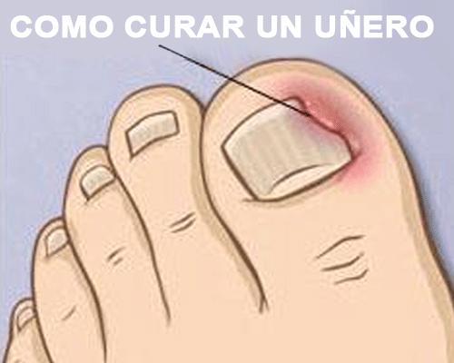 como se cura un unero en el pie