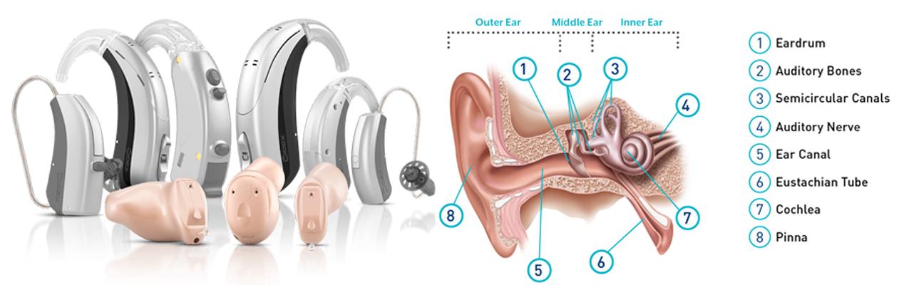 Pin on Hearing Loss Solution