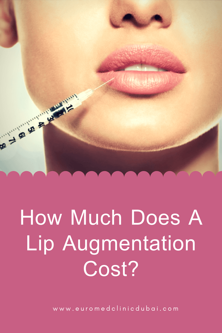 Are you digging information to know lip augmentation cost or how
