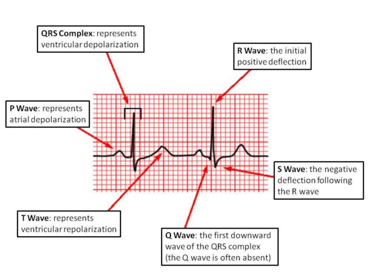 Ekg basics pr interval from the start of the p wave to the start ekg basics pr interval from the start of the p wave to the start of the qrs complex pr segmentfrom the end of the p wave to the start of the qrs pooptronica Images