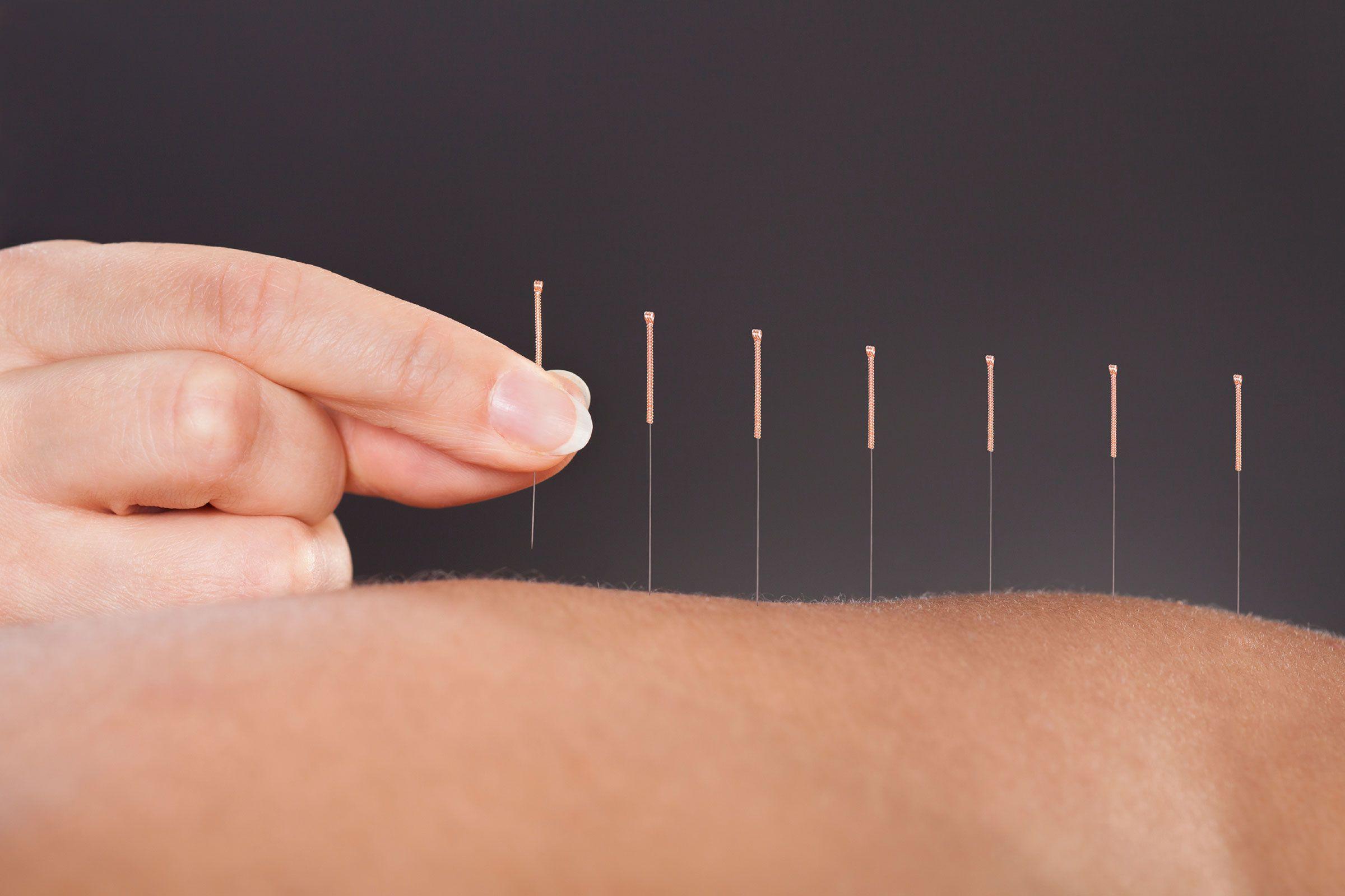 Apply Acupuncture To Treat #Vitiligo