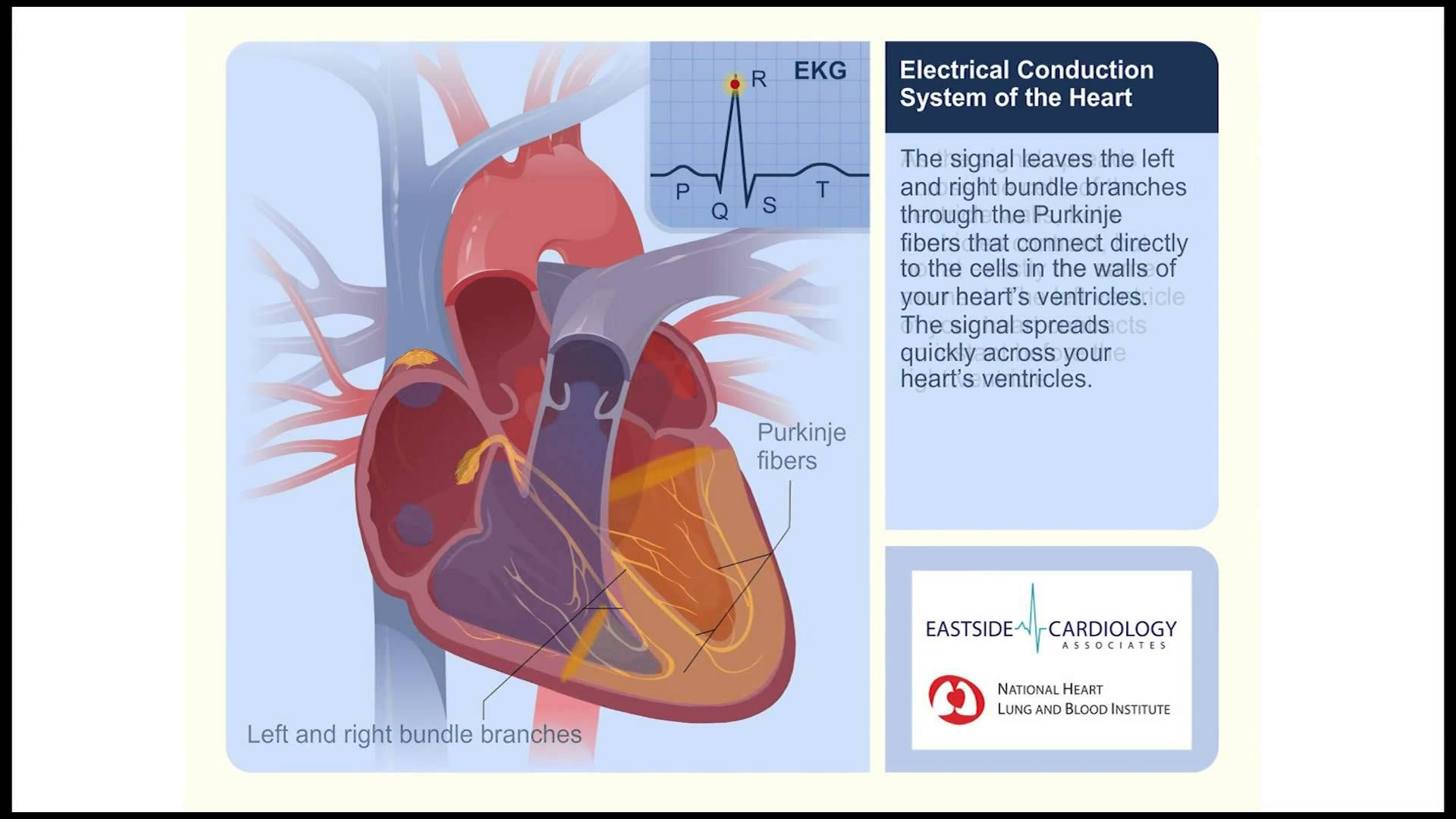 Electrical conduction system of the heart in relation to ecgekg i do not own this content how the electrical system of the heart works provided by eastside cardiology eastsideca ccuart Choice Image