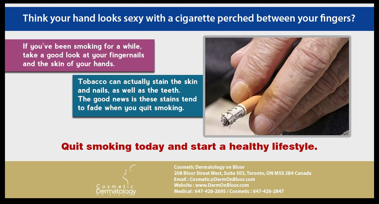 Pin by Cosmetic Dermatology on Bloor on Did you know