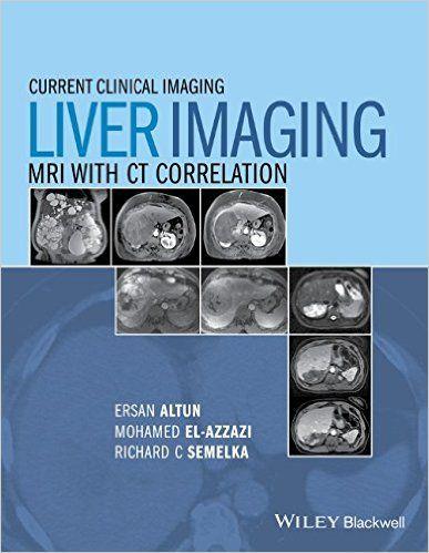 Liver imaging mri with ct correlation pdf radiology and medicine liver imaging mri with ct correlation pdf fandeluxe Choice Image
