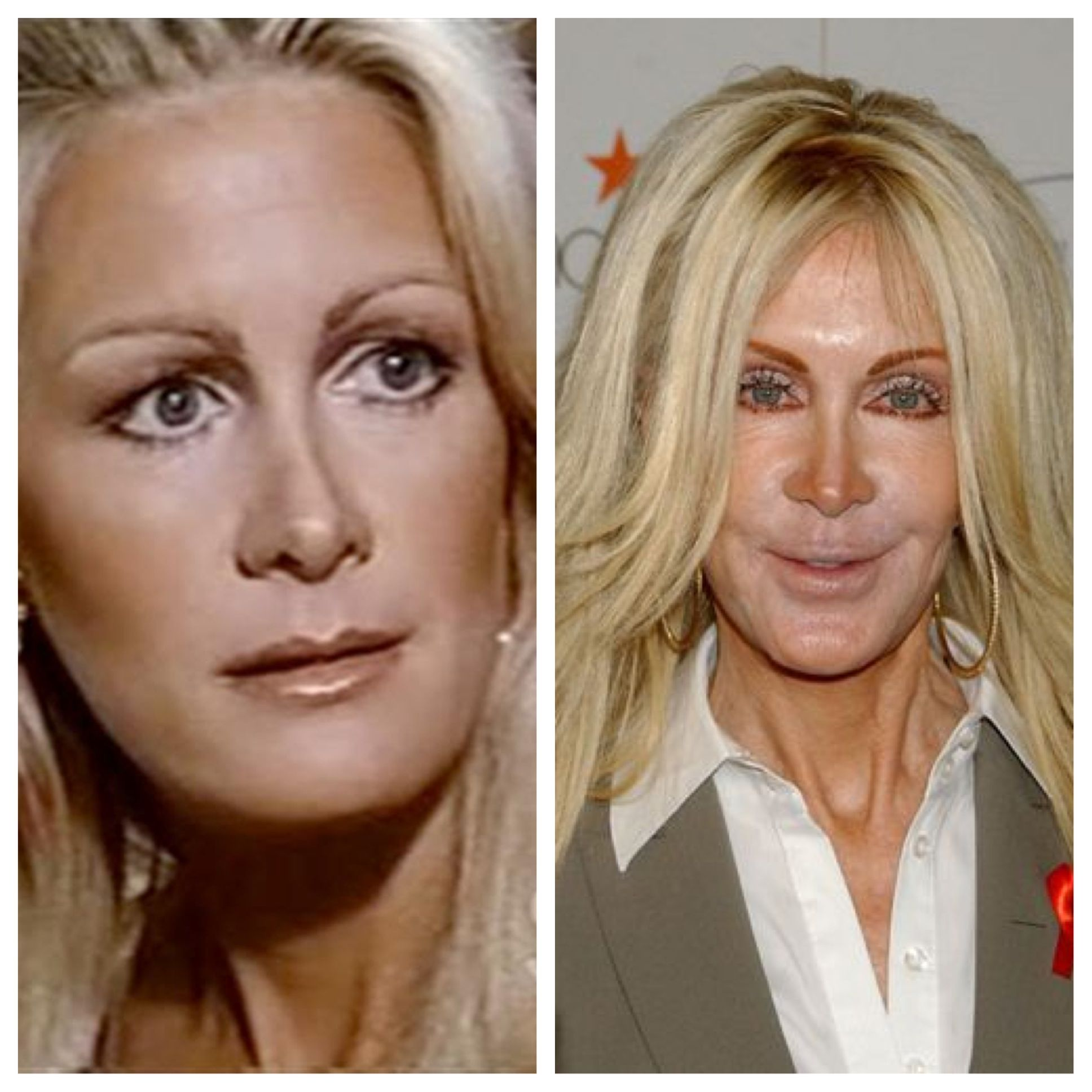 Joan Van Ark What Happened Before And After