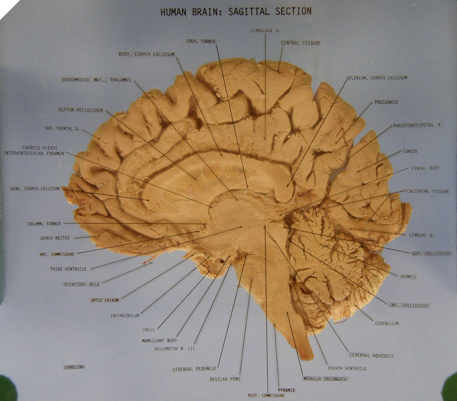 The Brain - Sagittal Section Anatomy (Labeled) | Miscellaneous ...