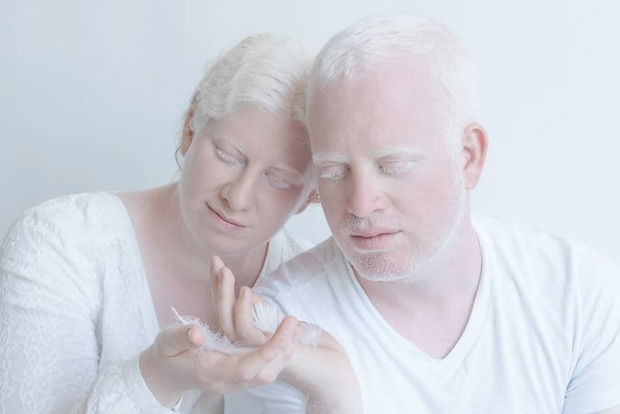 Resultado de imagen para parejas albinas