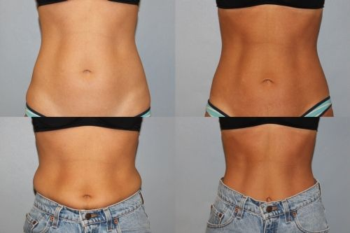 Actual Patient Photos 6 Months After Coolsculpting To Abdomen 2