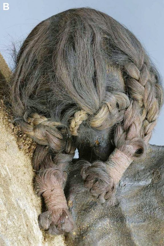Inca braids. This is the back of the head of a woman who was killed by several severe hits by a sharp object to her skull. Isotopes in her hair, which had been held with bands made of alpaca or llama hair, indicate that she lived near the coastline of Peru or Chile, and ate a diet high in seafood and maize. She was dying from Chagas disease, caused by parasites, when she was killed. She was probably then buried in the dry sands of the Atacama Desert, which preserved her body.