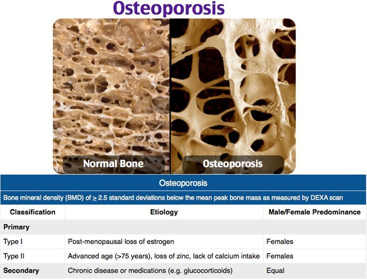 38+ What medications are used for osteoporosis ideas in 2021