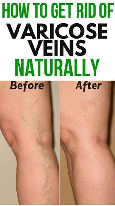 how to make varicose veins stop hurting