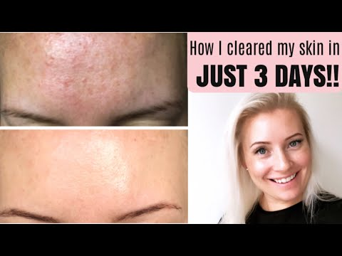7848dc7a716201d20451c3f1f586b71d - How To Get Rid Of Little Red Bumps On Forehead