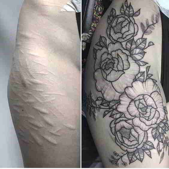Tatuajes Para Tapar Cicatrices En Pierna Tatuajes