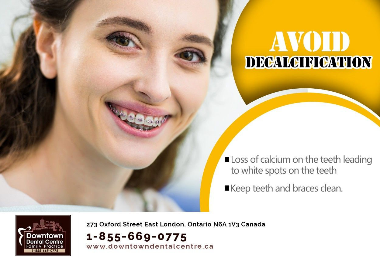 Have braces keeping your teeth and braces clean helps you
