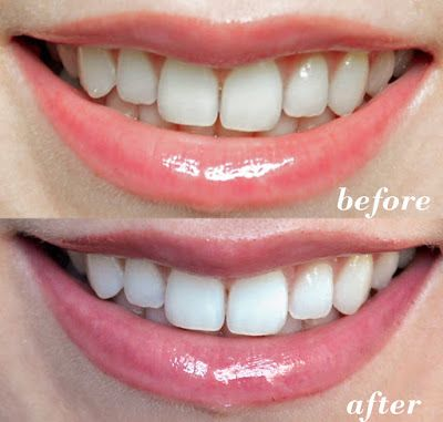 Pin On Teeth Whitening Before After Results