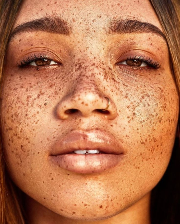 freckles, beautiful clear skin, no makeup Beauty routine