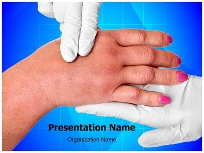 swollen hand PowerPoint Presentation Template is one of the best - nursing powerpoint template