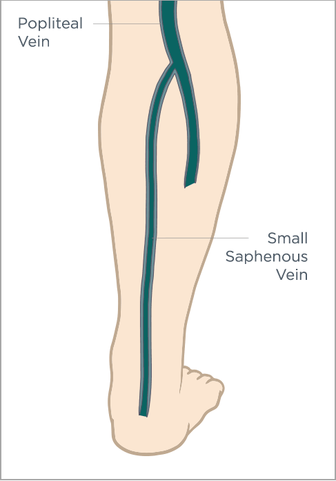 Varicose Veins Symptoms, Signs and Causes - The Ultimate Vein Guide