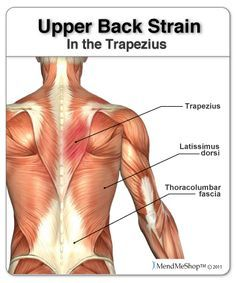 Trapezius muscle strain, if you have upper back pain it might be a muscle related injury. #aidmymuscle #mendmeshop