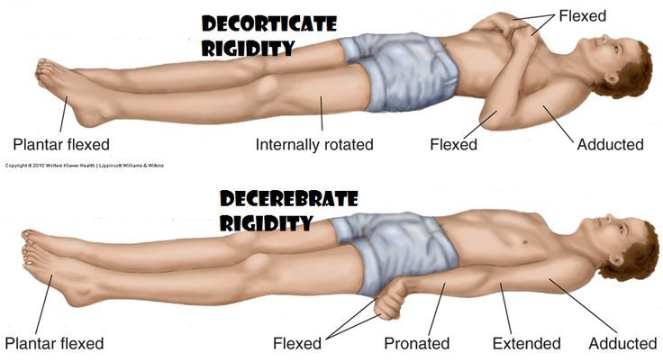 Differences between Decorticate and Decerebrate Posturing