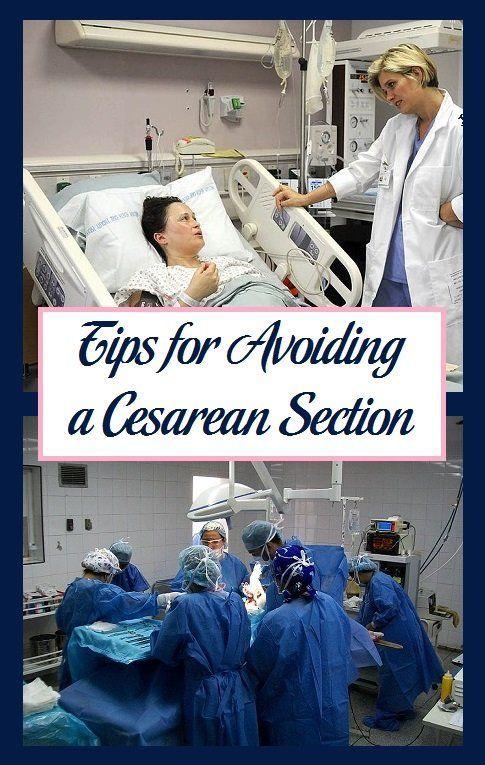 Tips for Avoiding a Cesarean Section