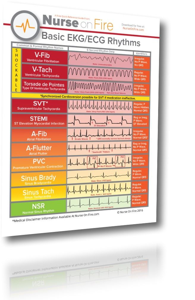 Nursing Ekg Cheat Sheet Great For New Nurses To Identify The Basic