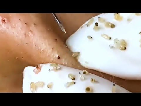 Photo of #Satisfying and #Relaxation with best #Blackhead Extraction (FULL SCREEN 1080HD)