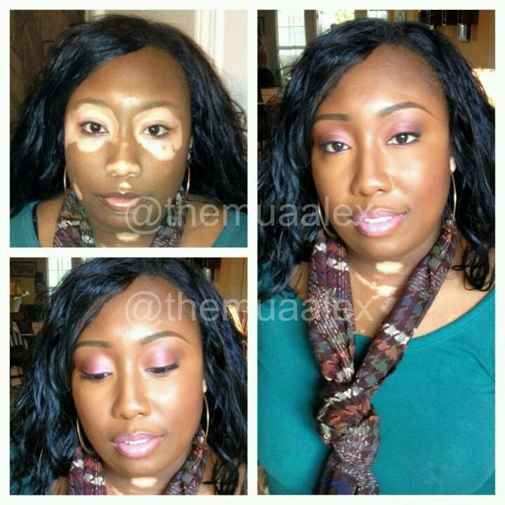 Makeup That Enhance Beauty On Sister W Vitiligo Skin Pigment Disorder No Foundation Just Mac Concealer Nw5 Indian Human Hair Human Hair Human Hair Extensions