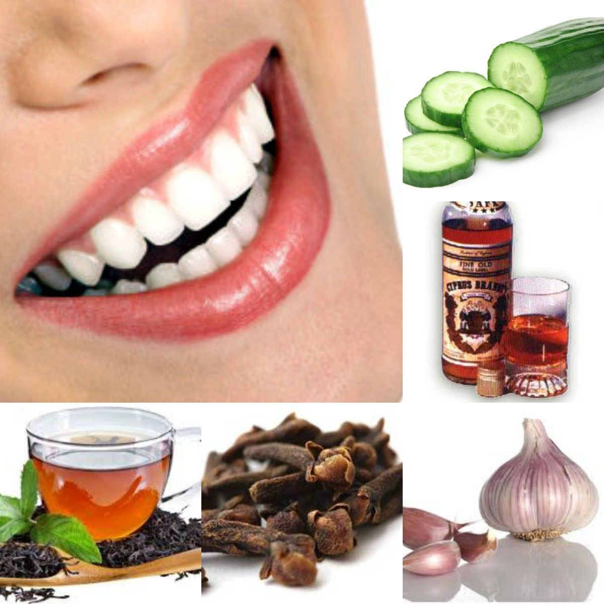 Home Remedies For A Toothache, Wisdom Teeth Coming Through, Wisdom Tooth Gum Pain, Painful Teeth  Click Here For The Free Video:  http://dentist-does-not-want-you-to-know.info-pro.co  Just imagine for a minute…  The relief you'll feel knowing that you'll never have to visit the dentist's office again...  Imagine the relief from throbbing painful, annoying toothaches...  Imagine all the attention and compliments when you flash your million dollar smile...  Imagine waking up, looking the…