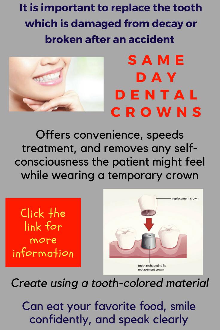 Marvelous Dental Crown Beautiful Teethwhiteningtrainer Dentalcrownsbeforeandafterlasvegas Dental Crowns Dental Dental Care For Kids