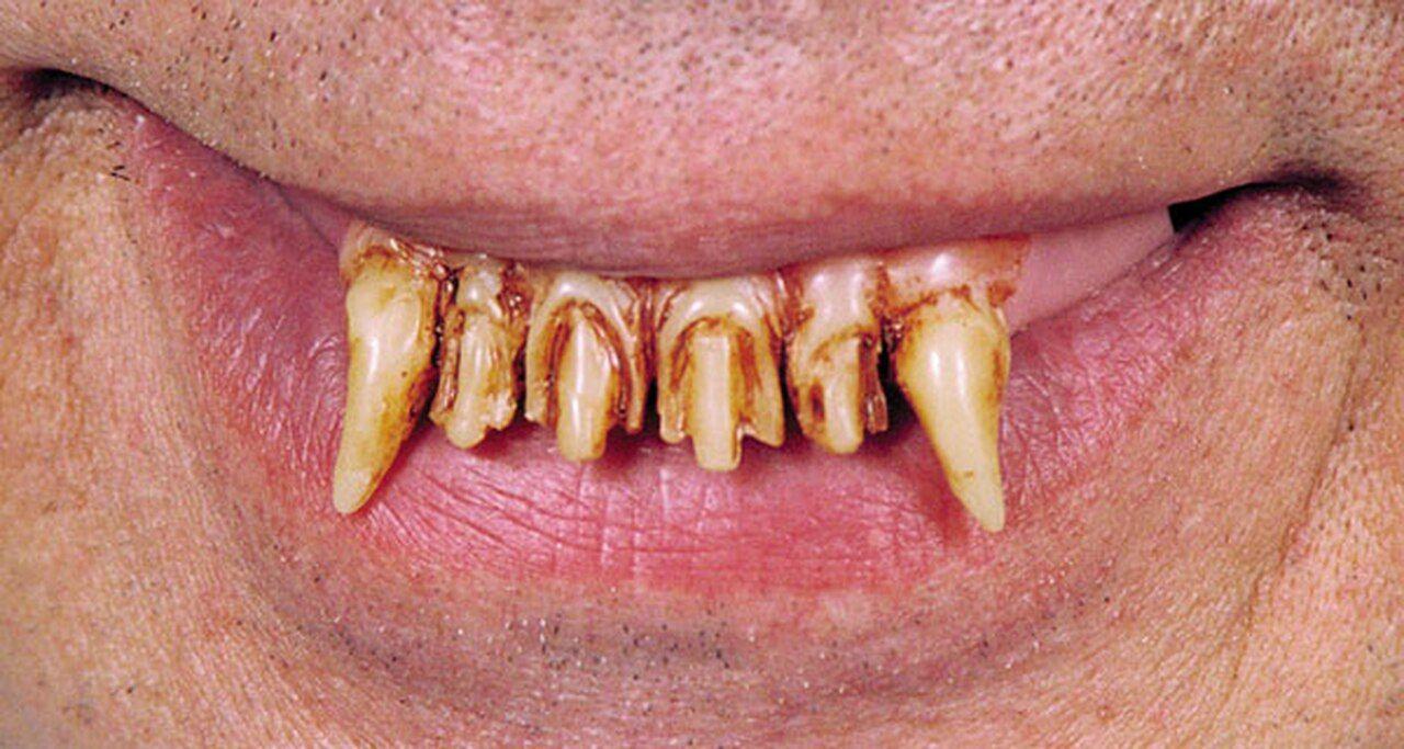 Witch Teeth Witch, SPONSORED, Teeth Ad Werewolf