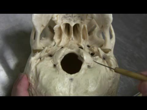 Dr. Fabian Identifying Parts of the Skull Part 2 of 2 ...