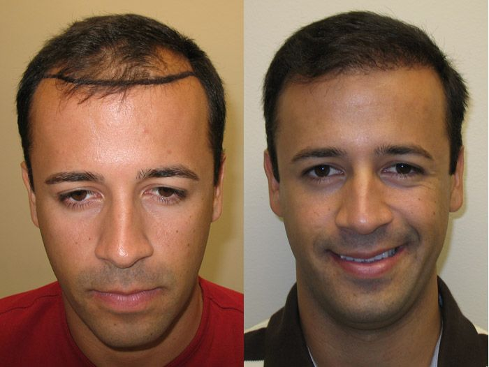Pin by Great Hair Transplants - Dr  Brett Bolton on Dr