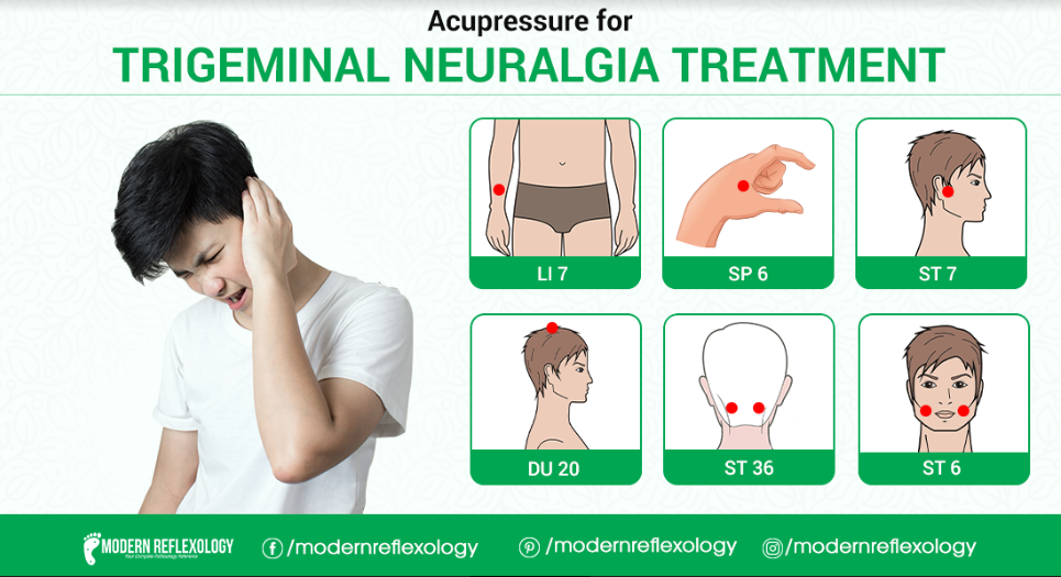 Acupressure points for Trigeminal Nueralgia in 2020 ...