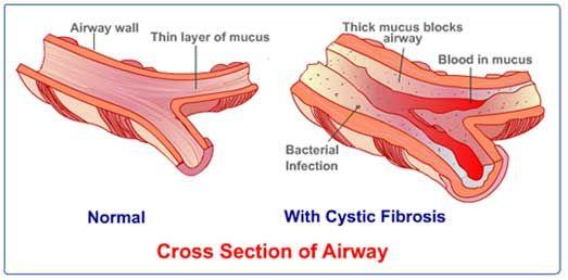 Cystic Fibrosis | Medicina y Anatomía