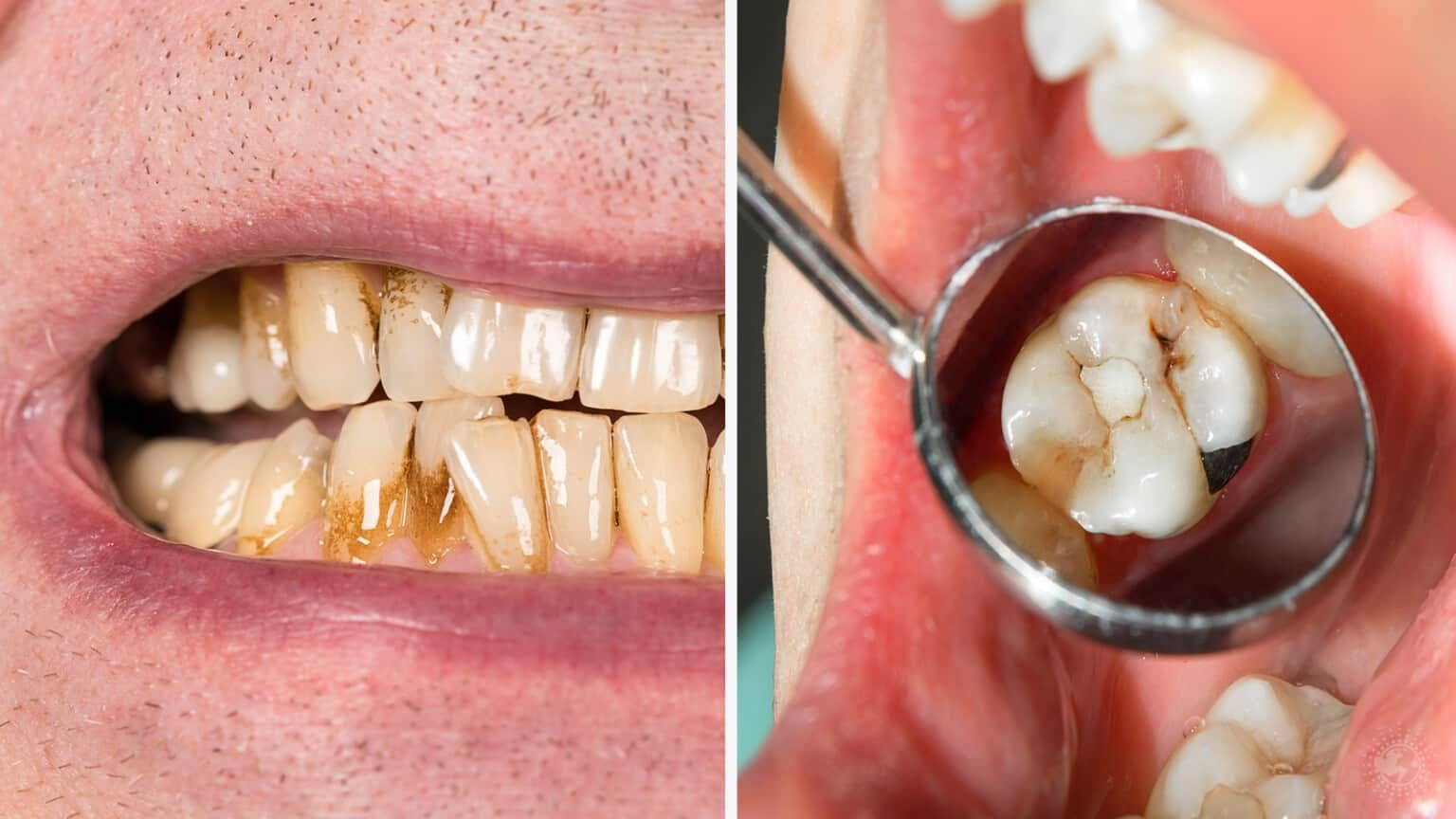 how to stop receding gums from hurting