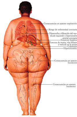 » Opinión: Sobre El cretinismo y la gordura