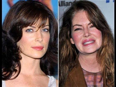Lara Flynn Boyle Plastic Surgery Before and After.. Just say NO to plastic surgery!