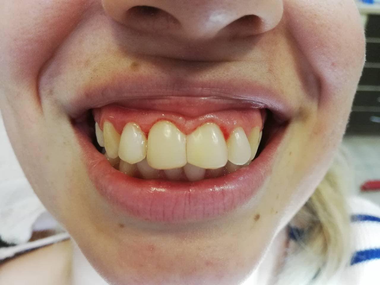 Кућно избјељивање зуба