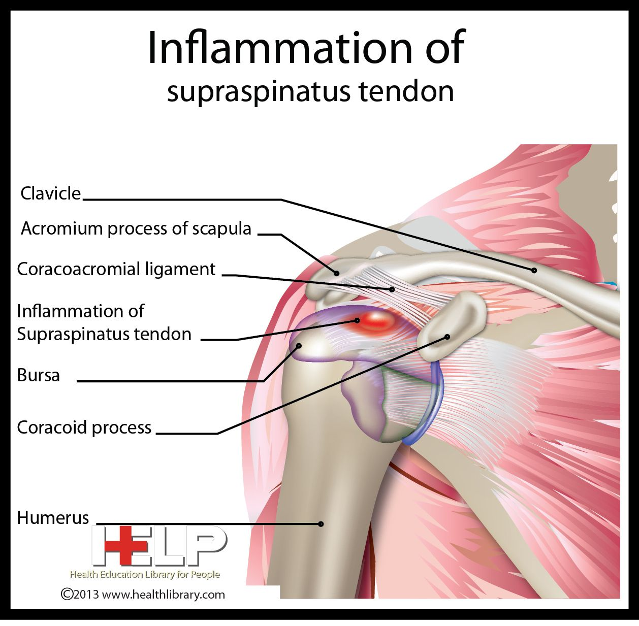 Inflammation Of Supraspinatus Tendon Skeletal Pinterest