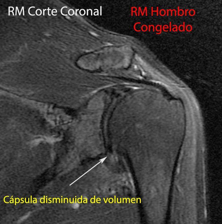 RM Hombro Congelado (MRI Frozen Shoulder) | Cirugía de Hombro y Codo ...
