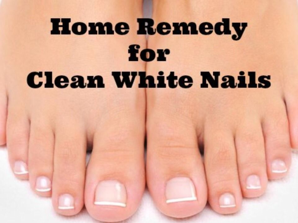 How To Make Your Nails White And Get Rid Of That Yellow Color Please Like Thanks :) #Health #Fitness...
