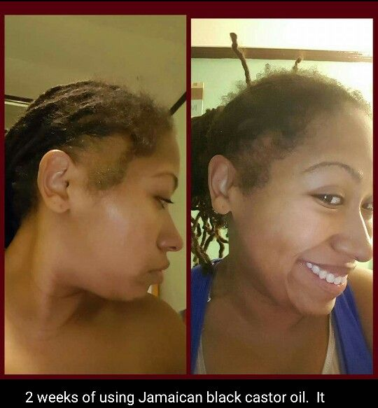 Jamaican Cornrow Hairstyles: Jamaican Black Castor Oil Before And After
