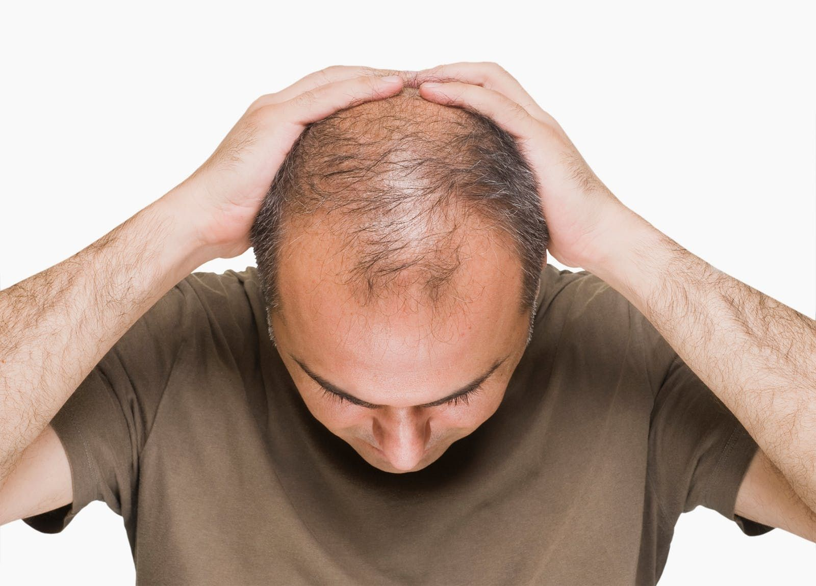 Male pattern baldness caused by elevated insulin diet